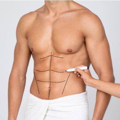 Six Pack Liposuction