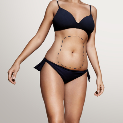Two Pack Liposuction